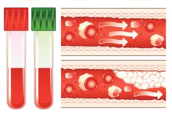 тромбоциты повышены